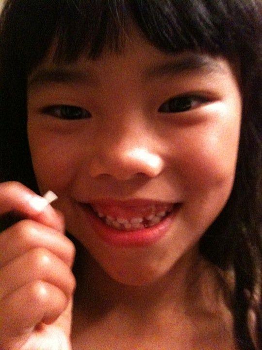 Emma tooth